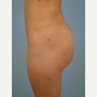 24 year old woman treated with Brazilian Butt Lift after 3432348