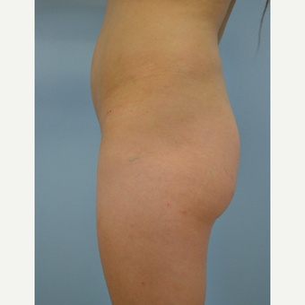 24 year old woman treated with Brazilian Butt Lift before 3432348