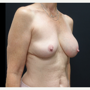 35-44 year old woman treated with Breast Implant Revision before 3731547