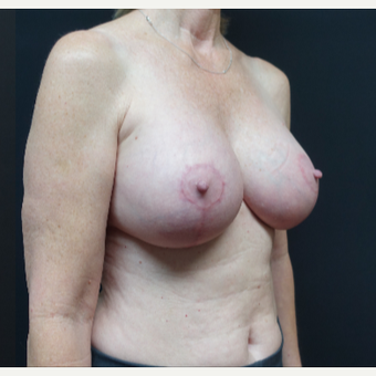 35-44 year old woman treated with Breast Implant Revision after 3731547