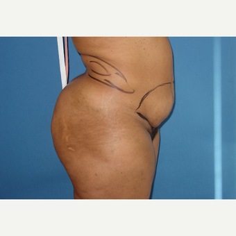 35-44 year old woman treated with Tummy Tuck before 3816478