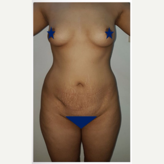 25-34 year old woman treated with Tummy Tuck - breast augmantation before 3176063