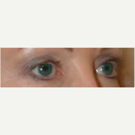 Eyelid Surgery after 3058030