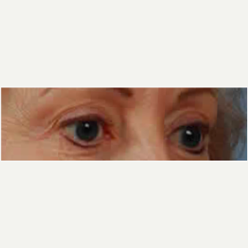 Eyelid Surgery before 3058030