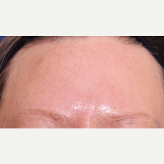 Laser used for improvement of skin texture and color before 2751227