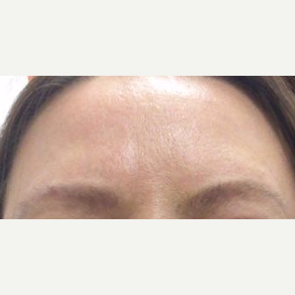 Laser used for improvement of skin texture and color after 2751227
