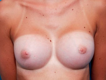 18-24 year old woman treated with Breast Augmentation after 3417984