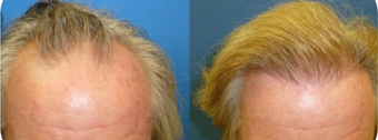 45-54 year old man treated with Hair Transplant before 3745677