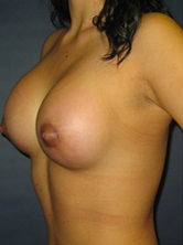 Breast Augmentation after 975011