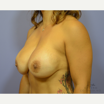 45-54 year old woman treated with Breast Implant Revision after 3415858