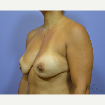 45-54 year old woman treated with Breast Implant Revision before 3415858