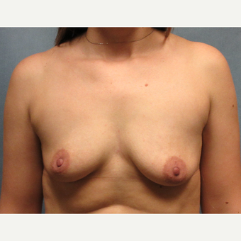25-34 year old woman treated with Breast Implants before 3174623