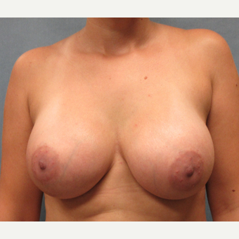 25-34 year old woman treated with Breast Implants after 3174623