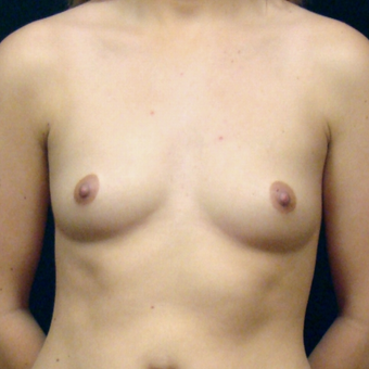 25-34 year old woman treated with Breast Augmentation before 3128393