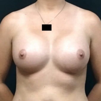 25-34 year old woman treated with Breast Augmentation after 3128393