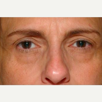 Woman treated with Thermage