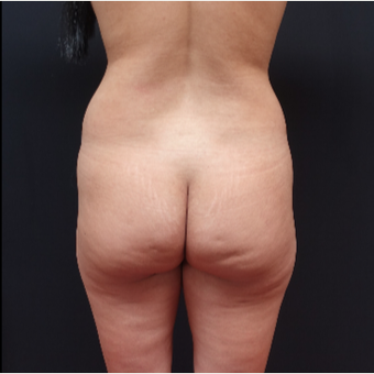 25-34 year old woman treated with Liposculpture before 3267093