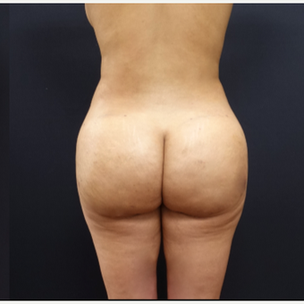 25-34 year old woman treated with Liposculpture after 3267093