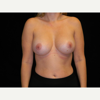 35-44 year old woman treated with Breast Augmentation after 3747786