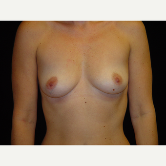 35-44 year old woman treated with Breast Augmentation before 3747786