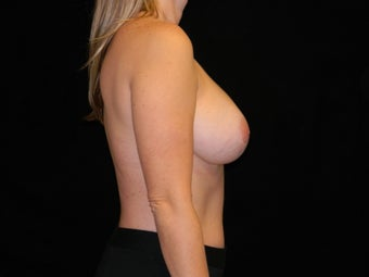 35-44 year old woman treated with Breast Augmentation 3747786