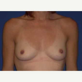 25-34 year old woman treated with Breast Implant Removal before 3219959