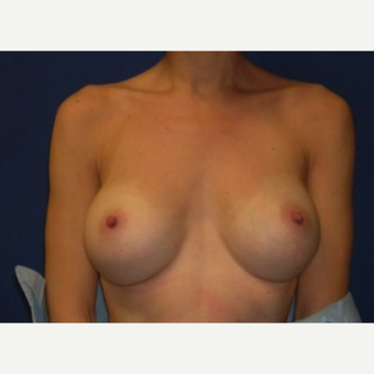 25-34 year old woman treated with Breast Implant Removal after 3219959