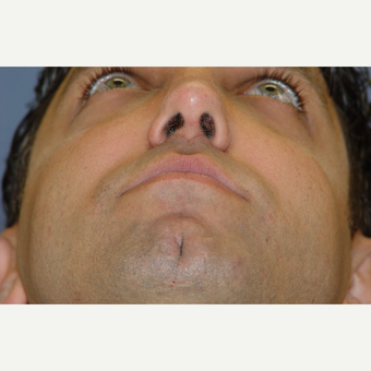 25-34 year old man treated with Revision Rhinoplasty after 3570387