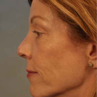 45-54 year old woman treated with Rhinoplasty after 3332832