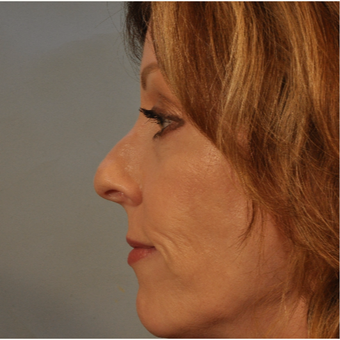 45-54 year old woman treated with Rhinoplasty before 3332832
