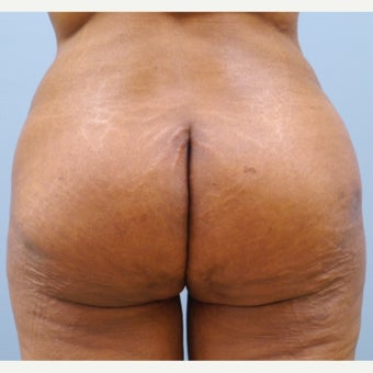 55-64 year old woman treated with Butt Augmentation after 2238092