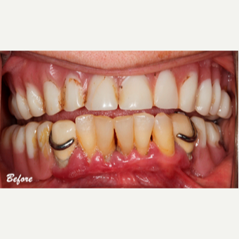 45-54 year old woman treated with Dental Implants before 3577694