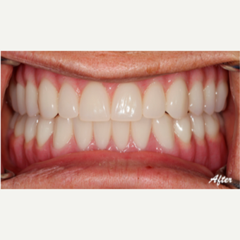 45-54 year old woman treated with Dental Implants after 3577694