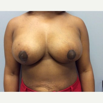 25-34 year old woman treated with Breast Lift after 2467597
