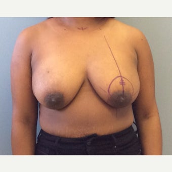 25-34 year old woman treated with Breast Lift before 2467597