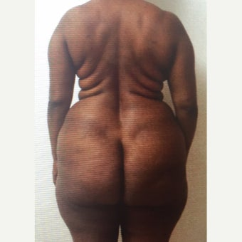35-44 year old woman treated with Liposuction before 2500308