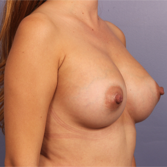 35-44 year old woman treated with Breast Augmentation after 3646964