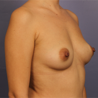 35-44 year old woman treated with Breast Augmentation before 3646964