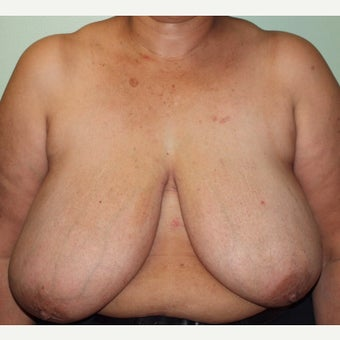 55-64 year old woman treated with Breast Reduction before 2437596
