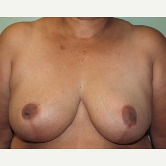 55-64 year old woman treated with Breast Reduction after 2437596