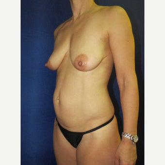 45-54 year old woman treated with Mommy Makeover before 3136110