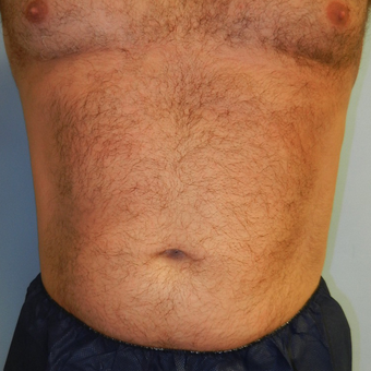 35-44 year old man treated with CoolSculpting after 3748674