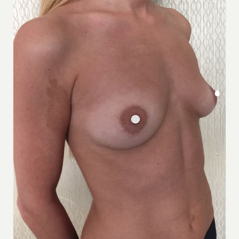 25-34 year old woman treated with Breast Augmentation before 3244125