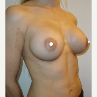 25-34 year old woman treated with Breast Augmentation after 3244125