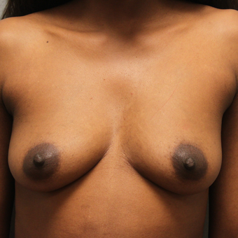 35-44 year old woman treated with Breast Augmentation before 3460336