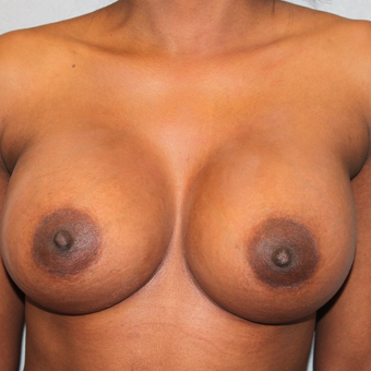 35-44 year old woman treated with Breast Augmentation after 3460336