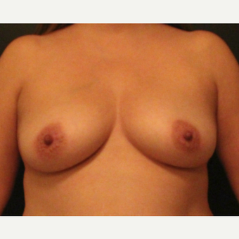Breast Augmentation with Silicone Implants before 2940085