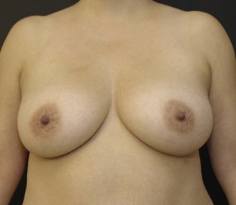 Breast Augmentation with Silicone Implants after 2940085