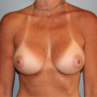 38 year old had Breast Augmentation to add volume and improve sag after 3544375