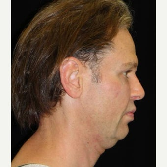 35-44 year old man treated with Neck Lift before 1706852